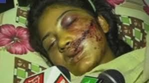 Saba bị bắn nhưng không chết